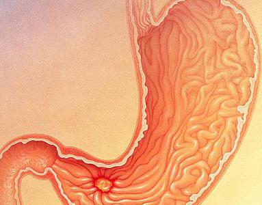болезнь язва желудка