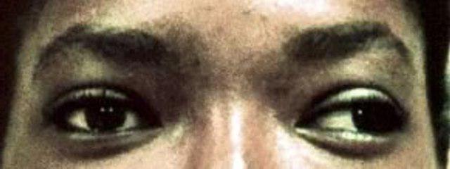 Видео лекции профессора жданова по восстановлению зрения