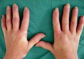 Реактивный артрит артропатия - описание болезни