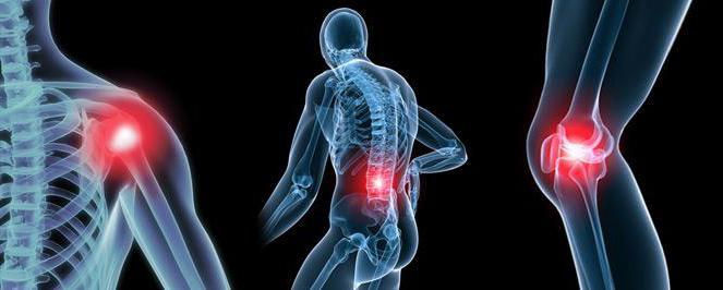 основные факторы риска заболеваний суставов