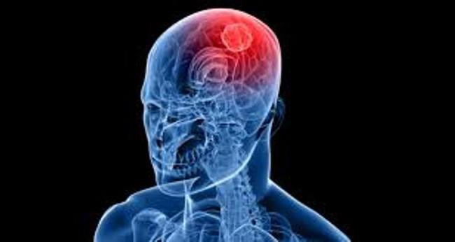 Как распознать инсульт своевременно?