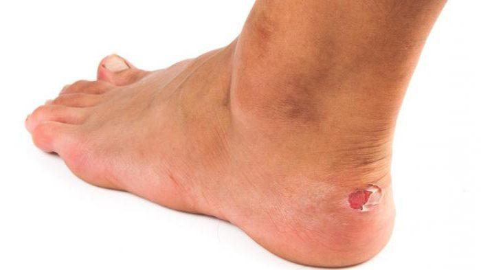мокрые мозоли на ногах лечение