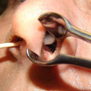 Перфорация носовой перегородки лечение стоимость