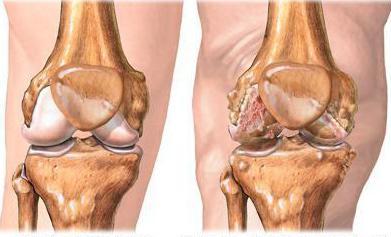 воспаление связки коленного сустава симптомы лечение