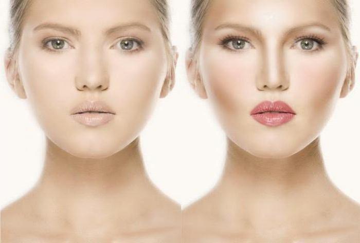 Широкий нос: как сделать нос меньше? Сколько стоит пластика носа