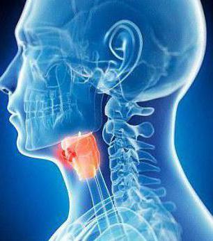 хронический катаральный фарингит