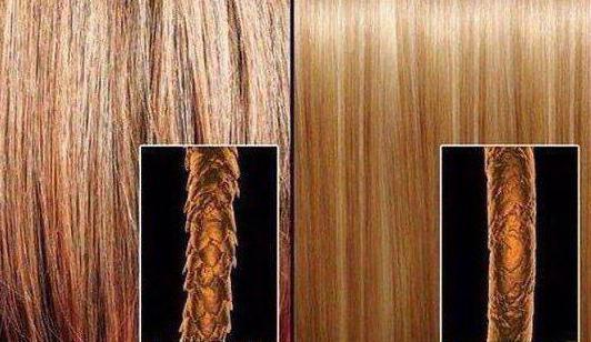 Из за чего волосы сильно выпадают
