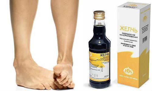 Методы лечения артроза кистей