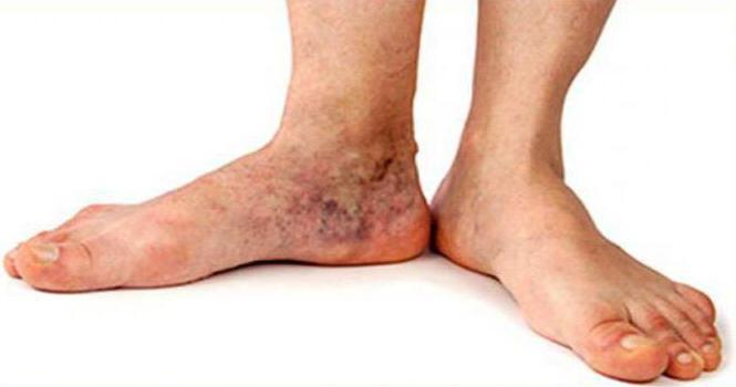 ломота в ногах причины
