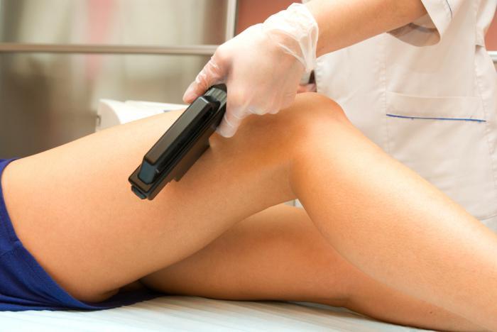 Как лечить косточки на ногах в домашних условиях