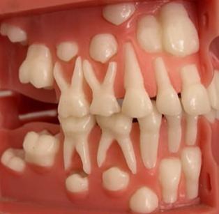 Молочные зубы у детей выпадение в каком возрасте схема