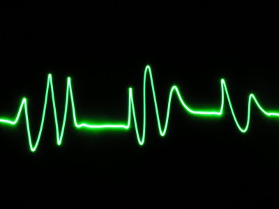 Радиочастотная абляция сердца. Отзывы