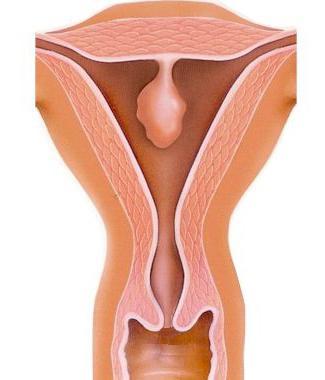 Полипоз эндометрия: причины, симптомы, лечение