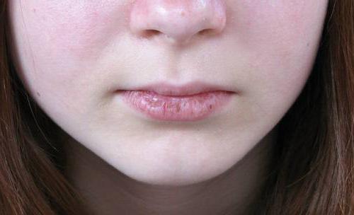 Какие болезни губ
