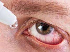 косопт глазные лекарство отзывы побочные эффекты
