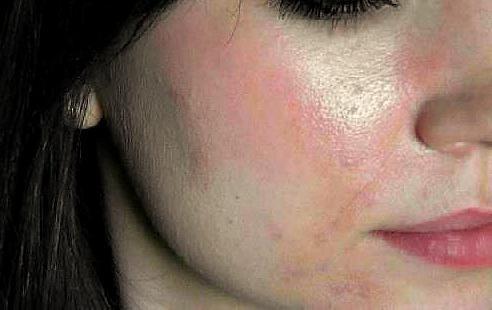 может ли быть аллергия от граната отзывы