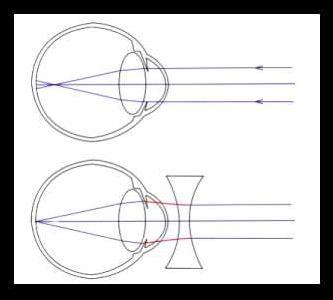 Нормальный показатель глазного давления