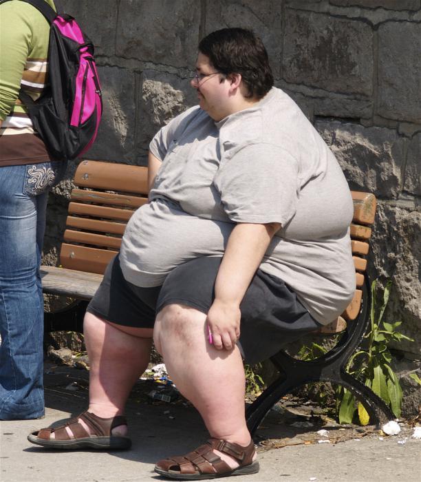 ожирение человека