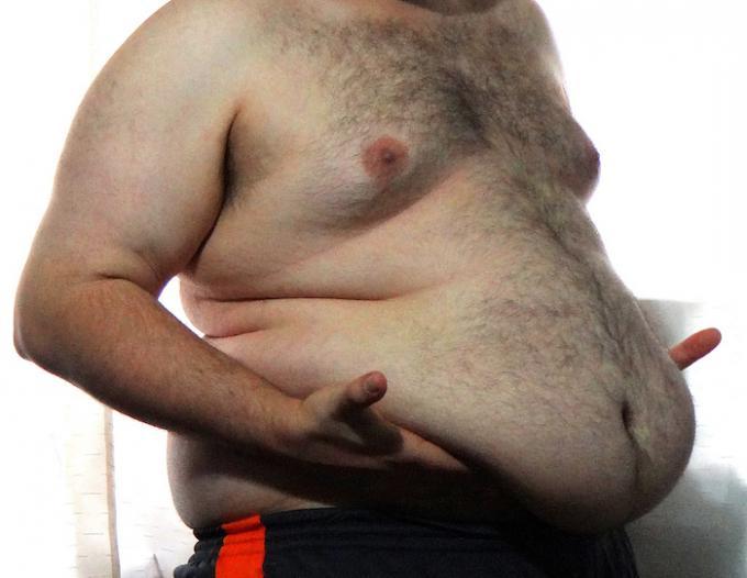 морбидное ожирение диета