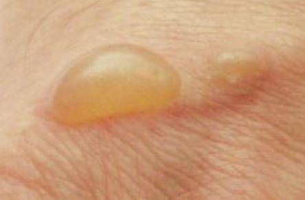 аллергия на губах причины
