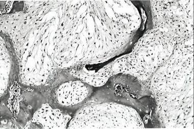 Энхондрома бедренной кости лечение