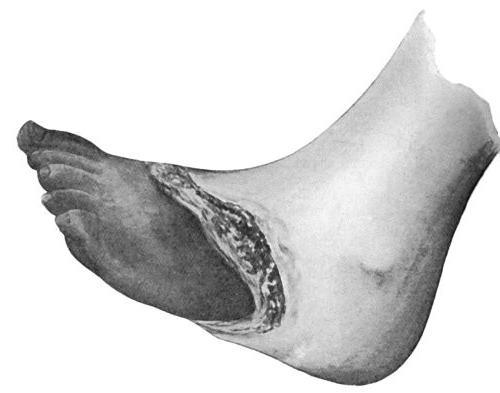 болезнь курильщика ноги