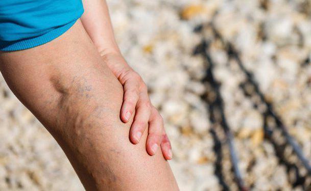 сильная ломота в ногах