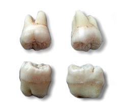 удаление нижнего зуба мудрости