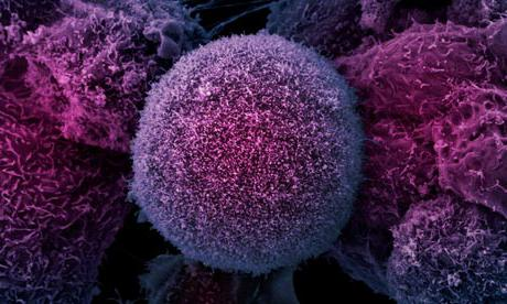 какие виды рака бывают