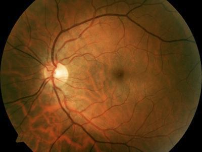 роговица глаза поражается при нехватке