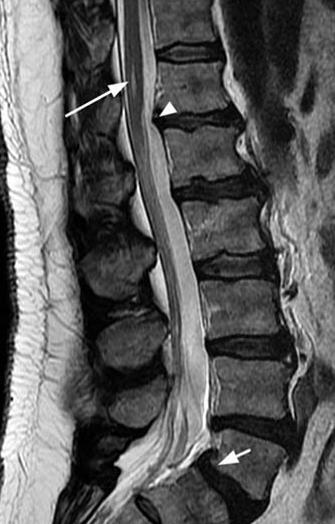 Корешковый синдром поясничного отдела позвоночника