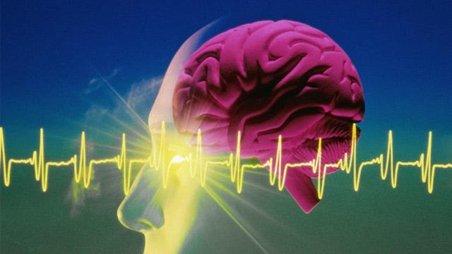 электроэнцефалография сна