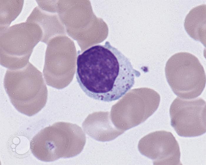 Форма лейкоцитов и тромбоцитов