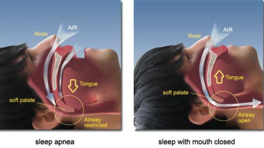 ребенок храпит во сне комаровский