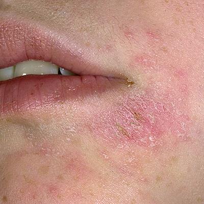 кожные заболевания фото и описание пиодермия