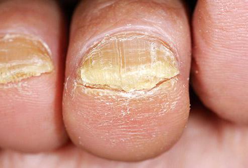 Лак для ногтей для лечения грибка ногтей стоимость