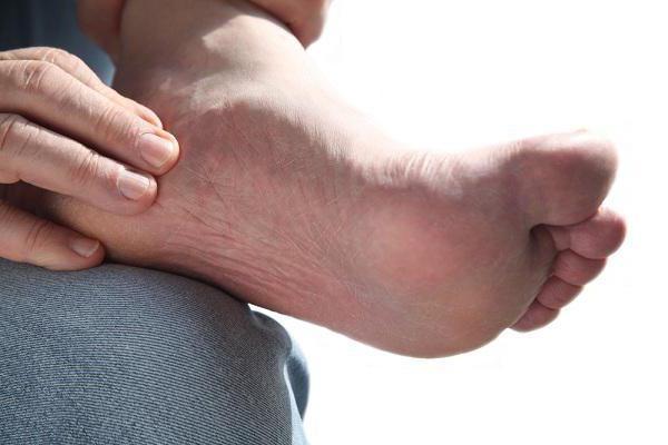как лечить отложение солей? Отложение солей в ногах