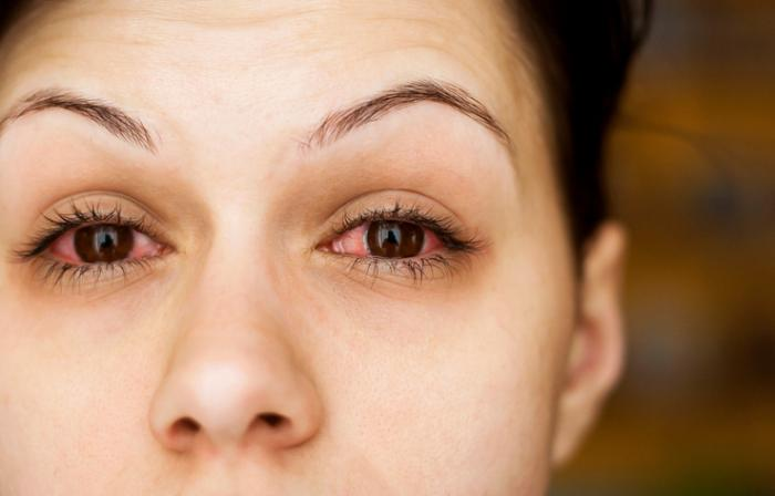 покраснение уголка глаза причины