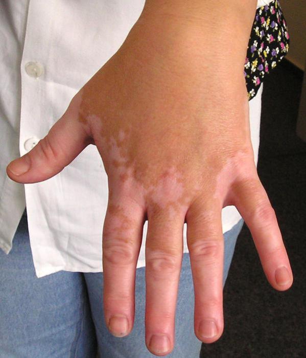 Белые пятна на коже после загара. Лечение