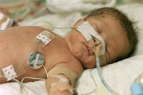 младенческая смертность это
