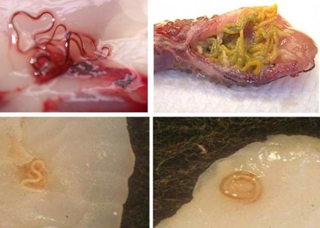 паразиты при беременности лечение