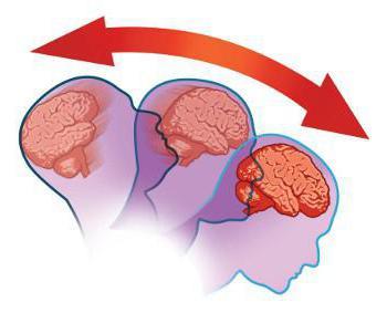 После удара головой болит голова: что делать? Признаки сотрясения мозга