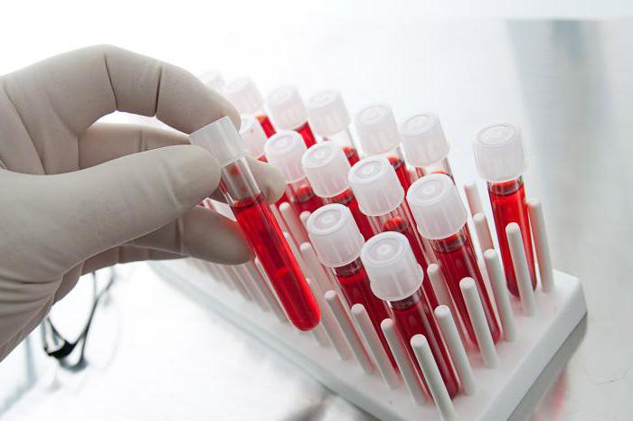 Диагностика гепатита с анализы