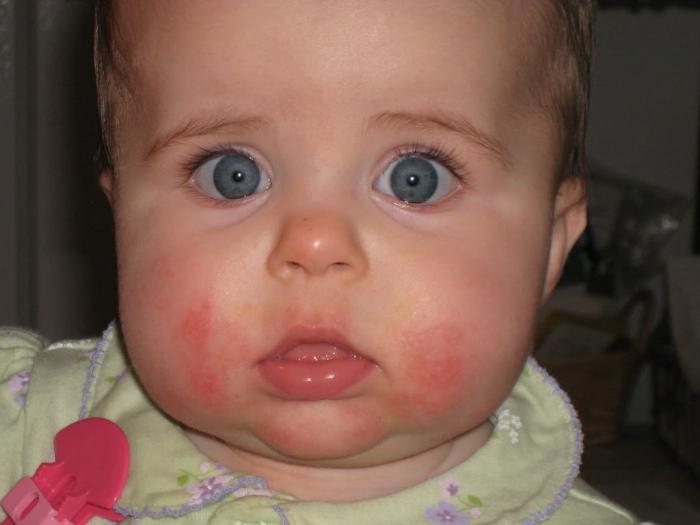 аллергия препарат