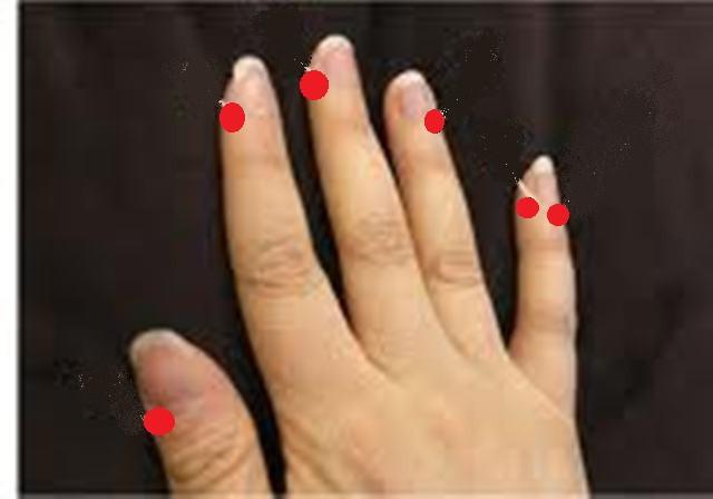 акупунктуры точки на руке