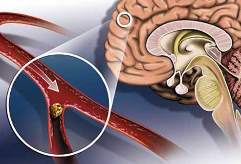 симптомы инсульта и микроинсульта