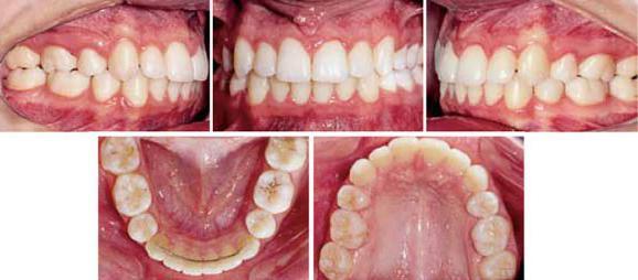 почему растут зубы мудрости