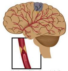нейрокс показания к применению