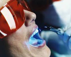 Отбеливание зубов в стоматологии - противопоказания