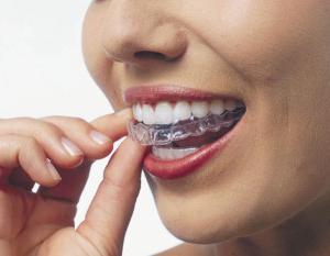 Сколько стоит отбеливание зубов у стоматолога и дома